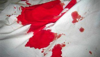 Сонник: кров до чого сниться кров у сні приснилася